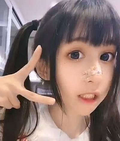 蔡萝莉为何总是齐刘海?当她露出额头后,发际线令人堪忧图片