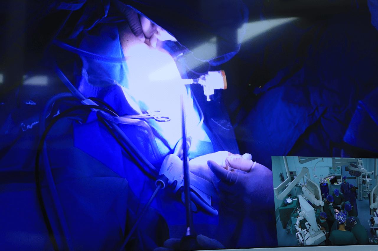 「4K+5 G」时代!前海人寿广州总医院胃肠外科成功完成一例大肠癌根治术直播