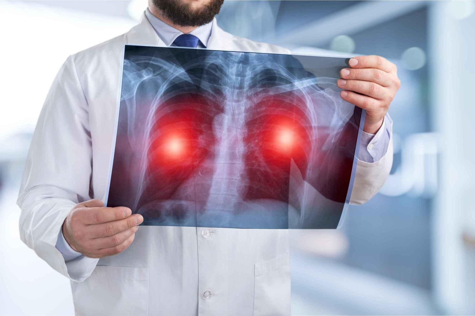 体检不做这个筛查,得了肺癌都不知道,医生提醒:别漏检 营养补剂 第5张