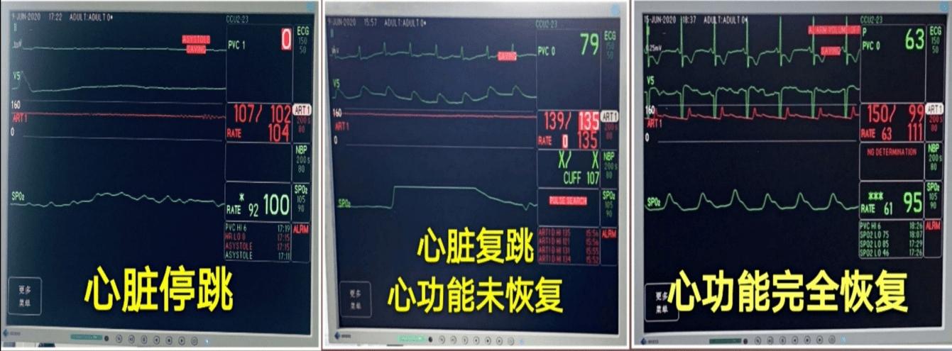 23岁女孩心脏停跳3天,72小时ECMO生死抢救