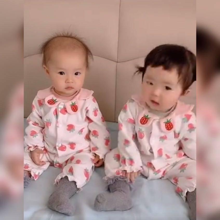 """双胞胎因发量""""分布不均""""而走红,网友:一个像夏天,一个像秋天"""