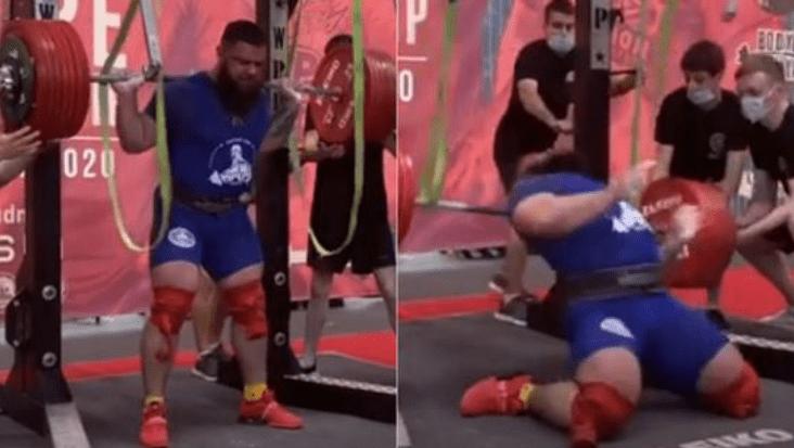 原创 惊心动魄!俄国举重冠军晒术后恐怖伤疤,双腿折断险被杠铃压死!