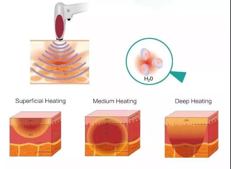射频美容治疗仪的原理_射频治疗仪多少钱一台