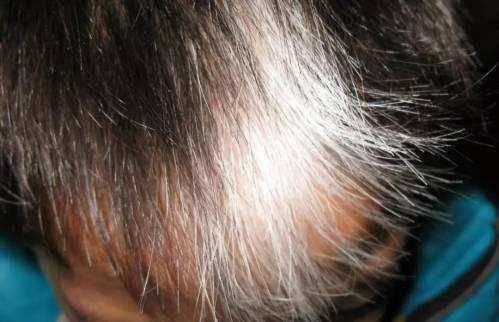 为什么会长白头发?大家先不用惊慌,和4种原因脱不了关系