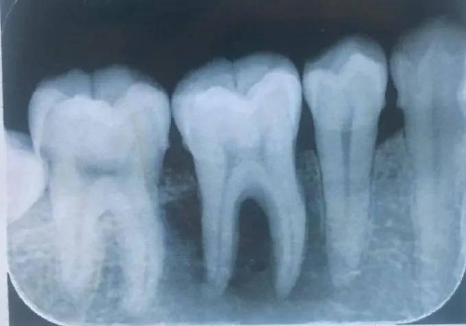 为什么看牙要拍片?担心辐射问题?  第8张