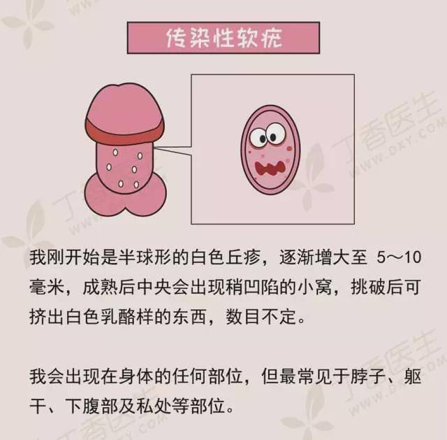 男性生殖感染的原因_男性真菌生殖感染_男性生殖感染的原因