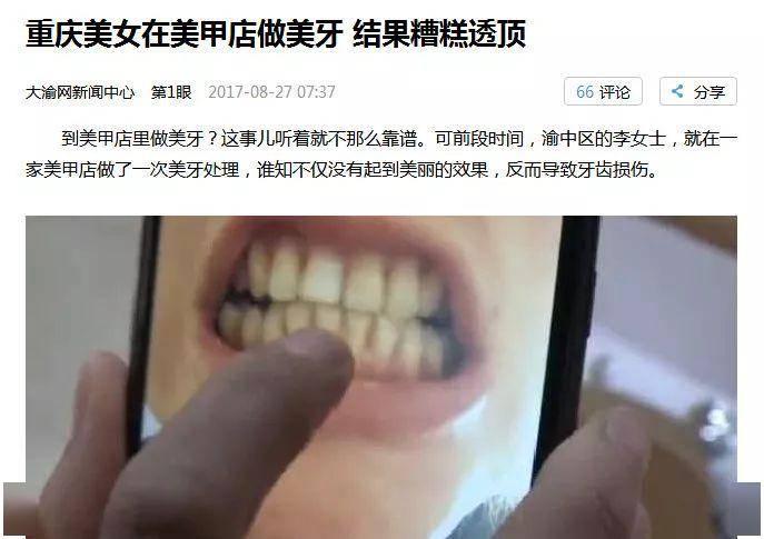 美甲店里修牙,你的牙齿不出问题才怪!