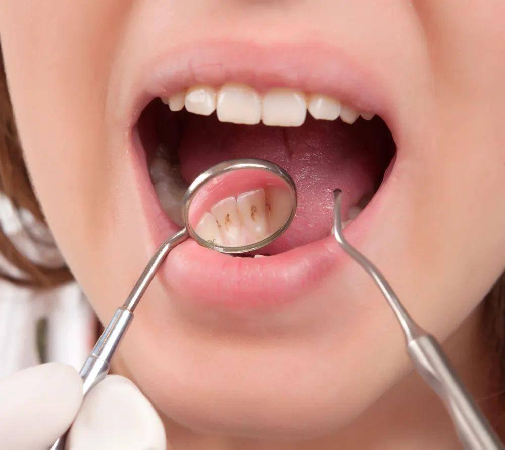牙龈萎缩图片对比