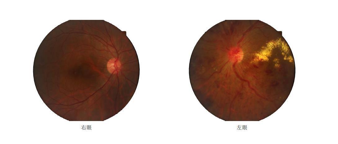 从实验室走向落地诊断,「依未科技」发力AI眼底检查