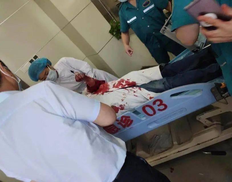 """6月22日,郑大一附院,一名性功能障碍患者在看病时说:""""反正我也活不了"""",之后将两名医生捅成重伤。"""