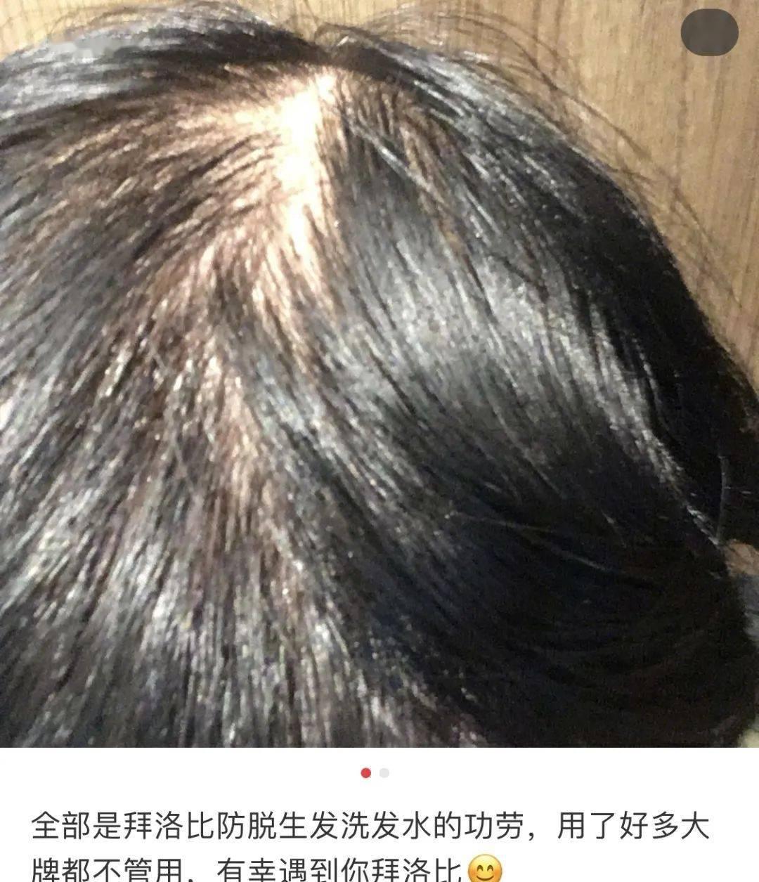 头发一把把掉?这个土耳其宝藏固发神器,竟然一步搞定防脱、控油、去屑!