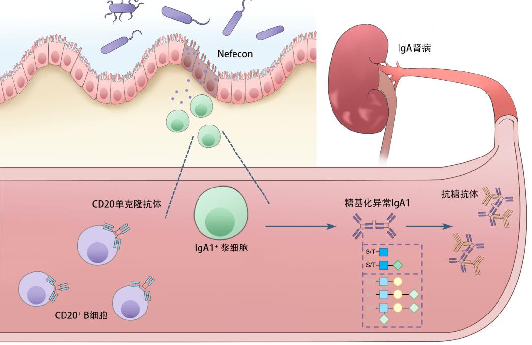 激素治疗肾病的原理_肾病吃激素后发胖图片