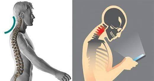 肩颈疼痛不适?每天这样靠墙拉伸几分钟就对了!(收藏级)