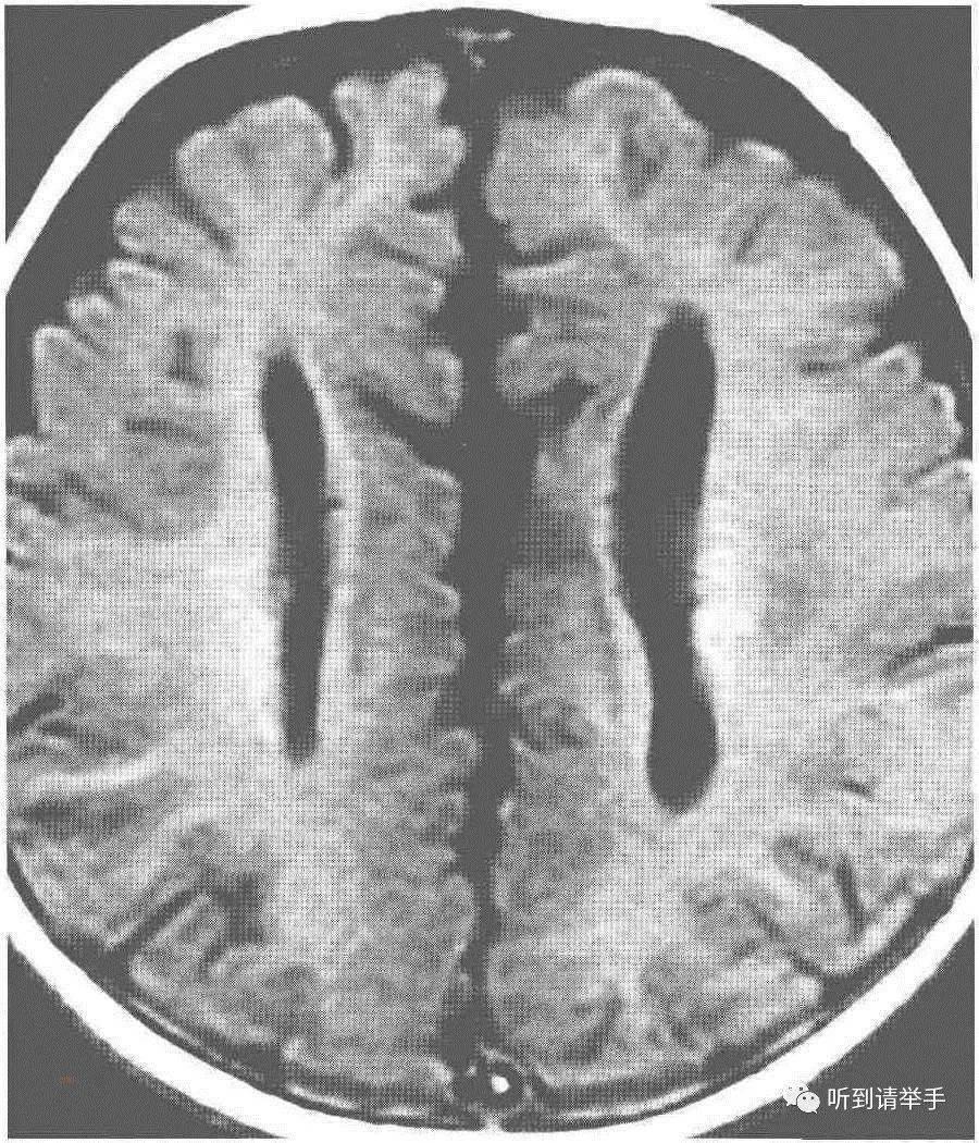 背部脂肪瘤图片
