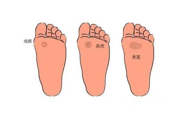 脚上长出的老茧又干又硬怎么办?教你一招,让你的脚恢复白嫩~
