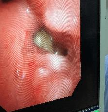 """宝宝喉咙里有奇怪的声音,医生揪出了一个""""捣蛋鬼""""  第4张"""