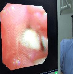 """宝宝喉咙里有奇怪的声音,医生揪出了一个""""捣蛋鬼""""  第6张"""