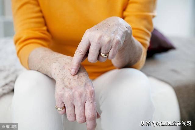 老年斑的消除方法(怎么样去除脸上的老人斑)