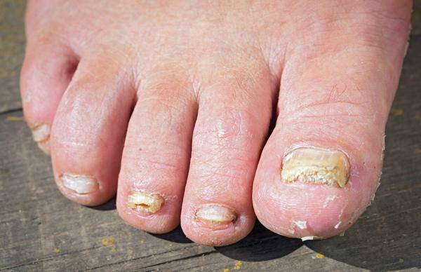 """""""得了灰指甲,一个传染两"""",医生:并非传染人,多年的理解错了"""