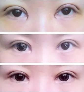割双眼皮多久可以化妆(做完双眼皮消肿小偏方)