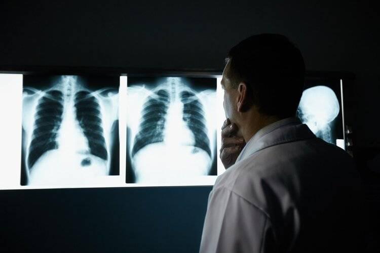 做一次CT的辐射真的很大?哪些人最好别做?这次总算清楚了  第3张