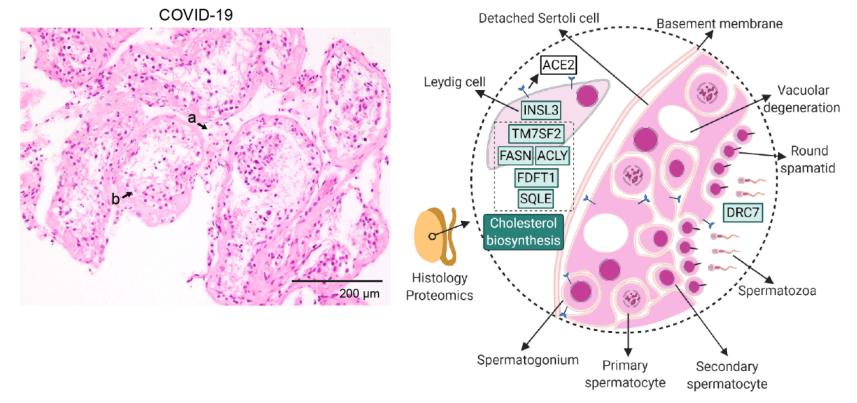 """《细胞》:新冠病毒为何攻击多个器官组织?我国专家发现了""""元凶"""""""