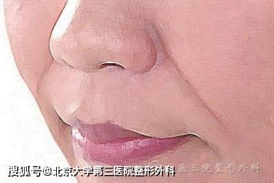 怎么才能改善化妆遮不住的玉玺图案?