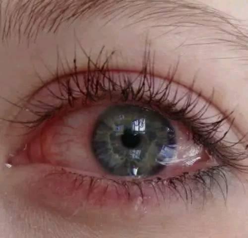 心理测试:你觉得哪个眼睛最伤心?测你有没有抑郁症!