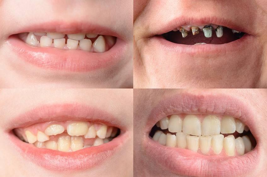 世界口腔健康日:刷牙时若没有做好这几点,别怪别人说你口臭