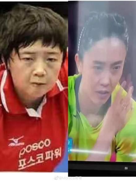 韩国乒乓球员向网友推荐变美秘诀:埋线双眼皮+皮肤管理
