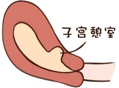 【二胎】有剖宫产瘢痕憩室,还能再要二胎嘛?