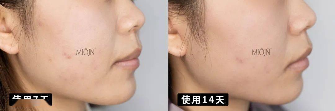 """会毁容、会留疤……皮肤科教授发言:""""口罩脸""""正在PUA你的肌肤!"""
