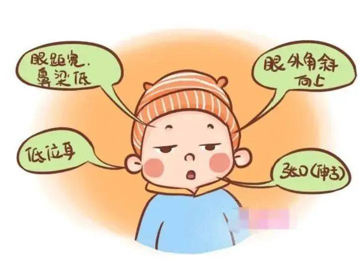 """关注""""唐氏综合征"""",避免生育""""蜜糖宝宝""""!"""
