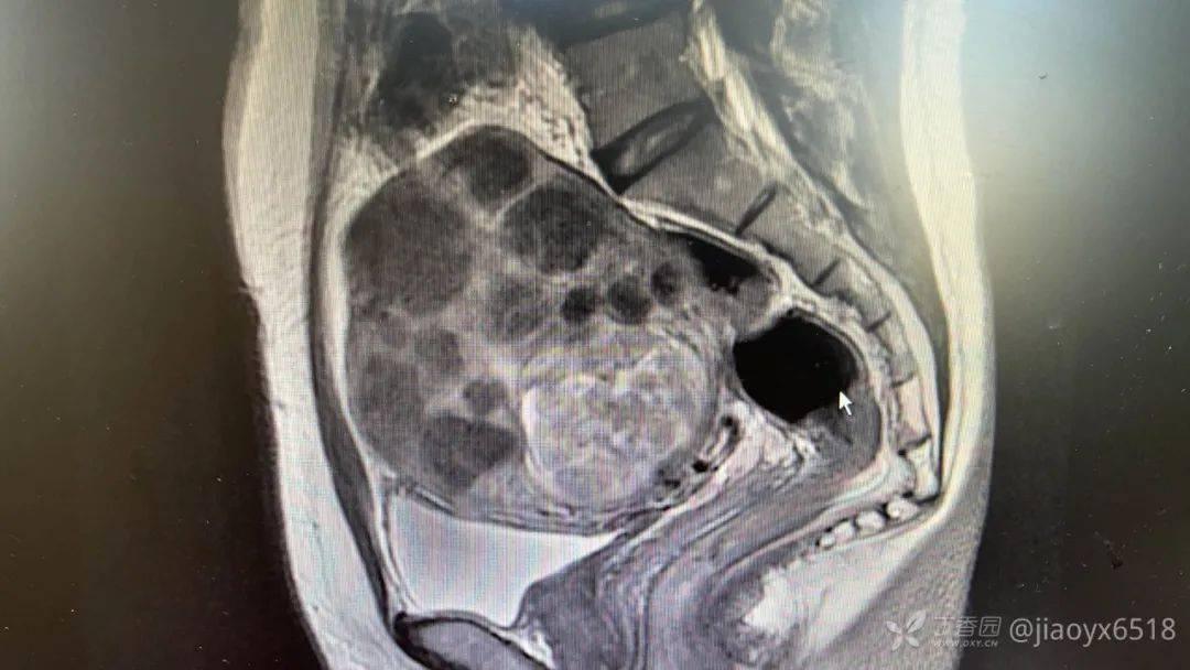 42 岁女性子宫内竟有 90 枚瘤子 医生大呼「挖瘤挖到手抽筋」-家庭网